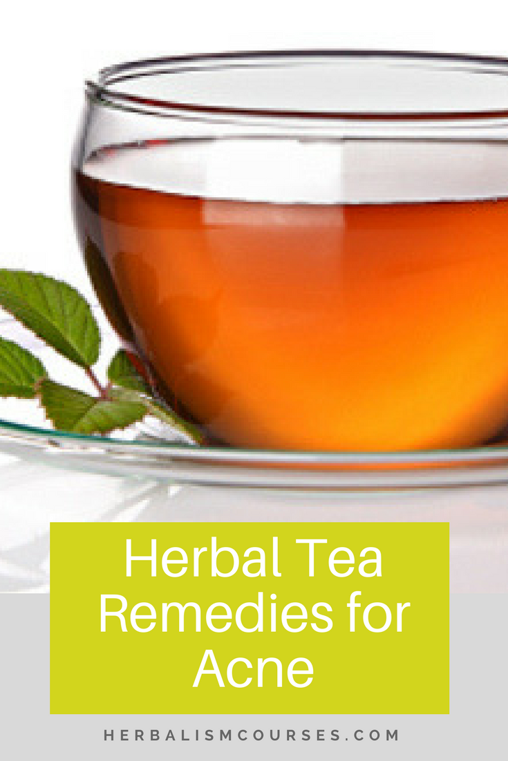 Learn about the five best herbal remedies for acne. They can all be taken daily as a tea to create healthy, beautiful skin from the inside out. #acne #NaturalSkincare